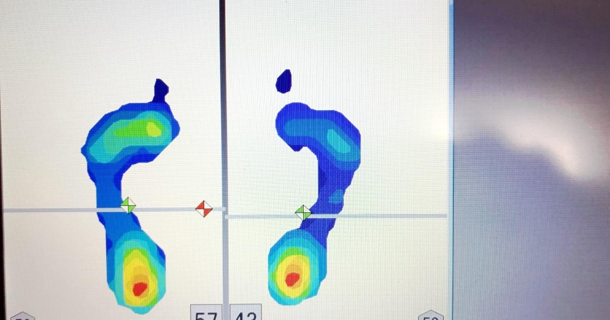 浮き指の足圧バランス画像