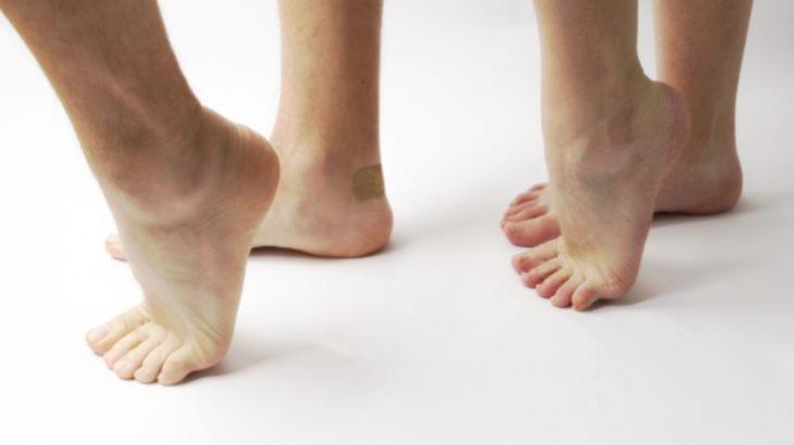 インソールで「浮き足」は治らない。でも、「浮き指」の改善には効果的