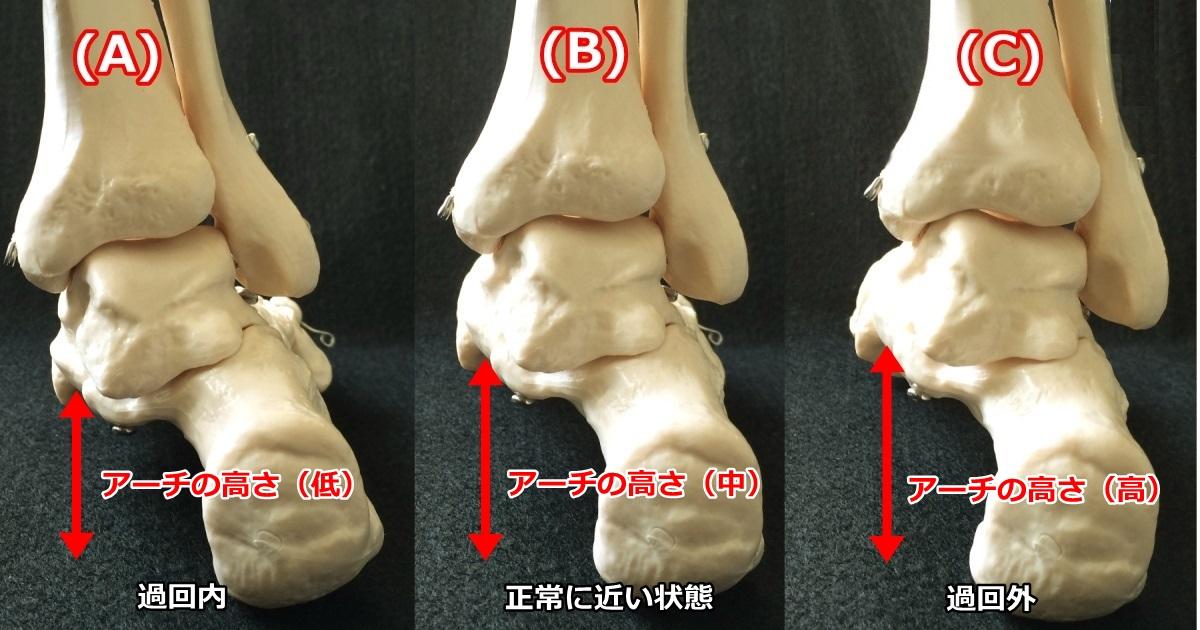 過回内、過回外、正常の足の傾き
