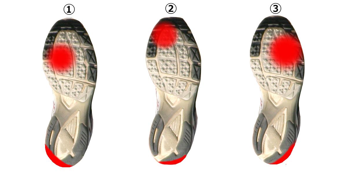 靴の裏の減り方
