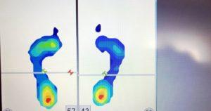 足圧画像-浮き指