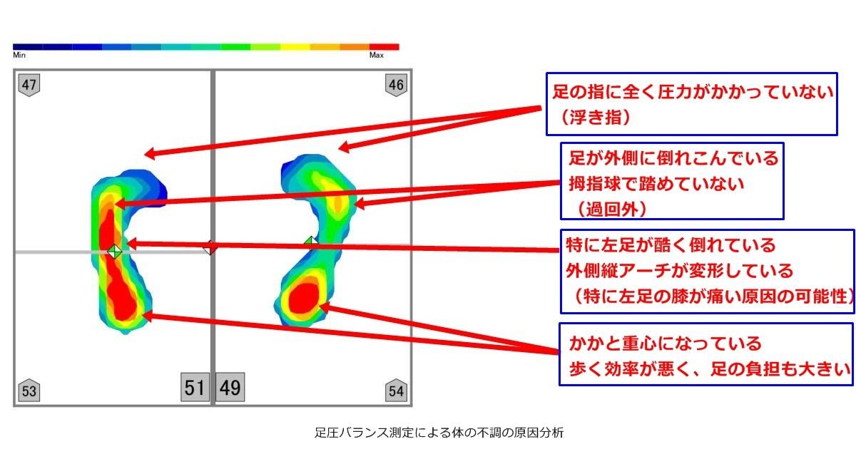 膝が痛い原因を足圧バランス測定から分析-足圧バランス測定による体の不調の原因分析