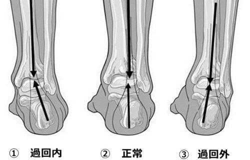 脚の傾き:過回内、過回外、正常、オーバープロネーション、オーバースピネーション