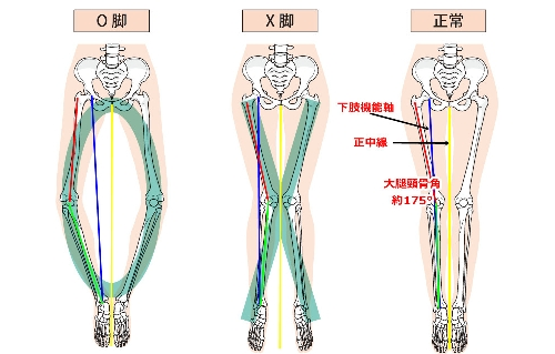 O脚、X脚、正常脚の画像