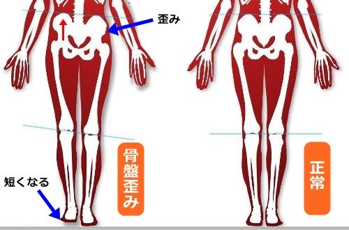 脚長差(左右の脚の長さの差)は骨盤の歪み