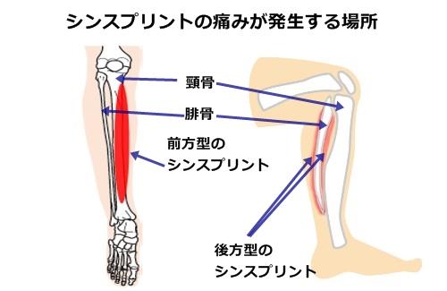 シンスプリントの痛みが発生する場所