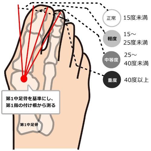 外反母趾の親指の角度による症状の程度の図解