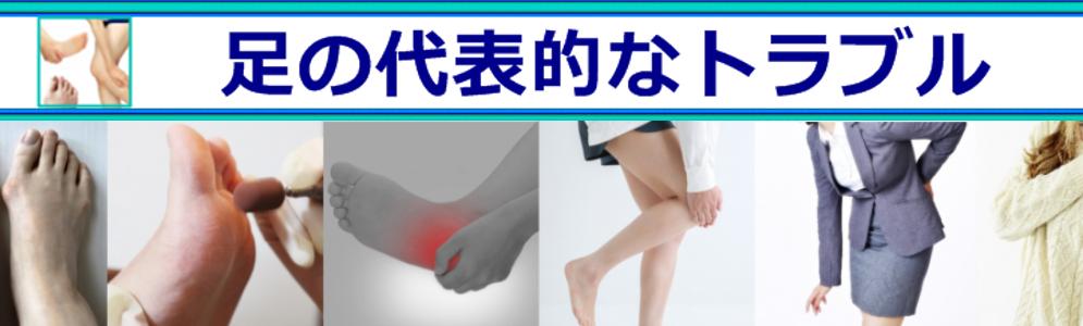 足の代表的なトラブル