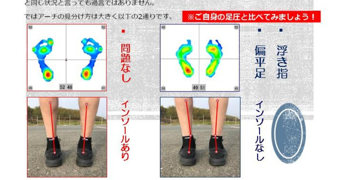インソールあるときとないときの差。足裏アーチが弱っていることはパンクしている自転車と同じです。