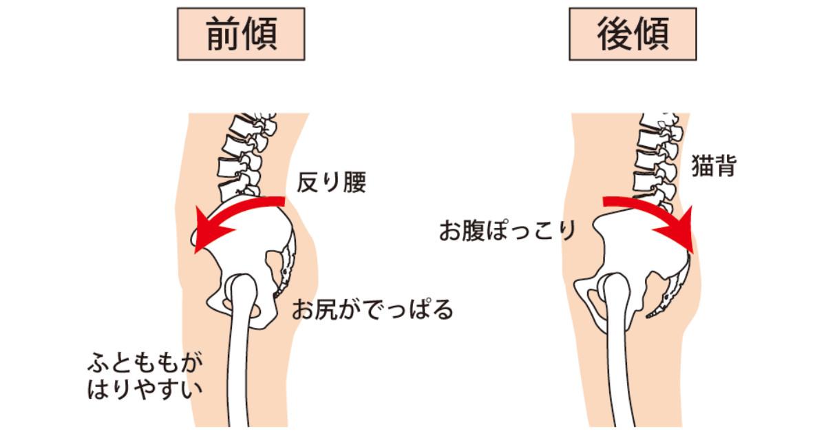姿勢による骨盤の傾き